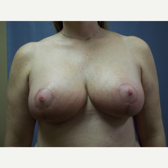 45-54 year old woman treated with Breast Reduction after 3538740