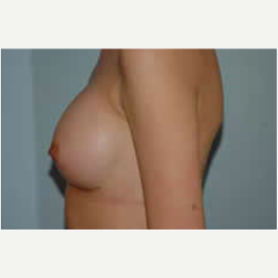 Breast Augmentation after 3058265