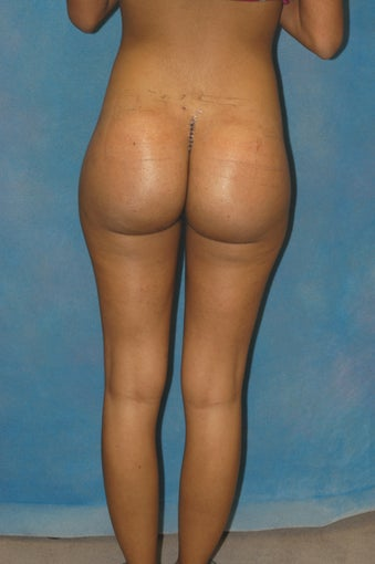 Women's Buttocks Augmentation  after 684649