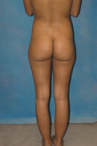 Women's Buttocks Augmentation  before 684649