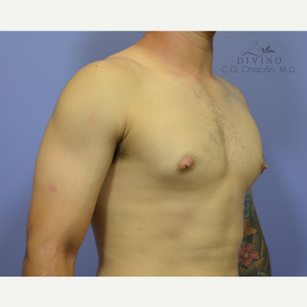 18-24 year old man treated with Nipple Surgery before 3421657