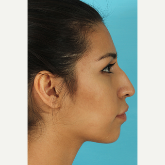 25-34 year old woman treated with Rhinoplasty before 3691046
