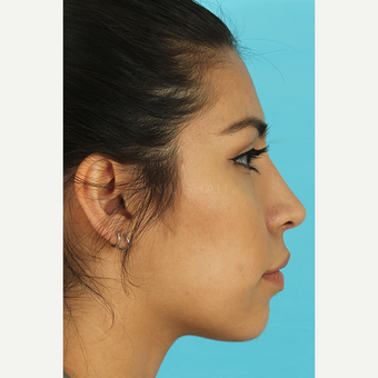 25-34 year old woman treated with Rhinoplasty after 3691046