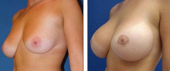 Breast Lift- Mastopexy before 1115839
