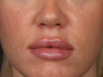 25-34 year old woman treated with Lip Augmentation after 2977399