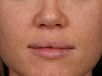 25-34 year old woman treated with Lip Augmentation before 2977399