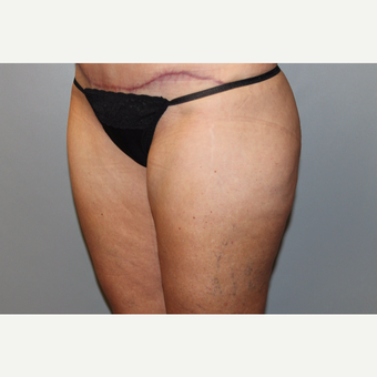 45-54 year old woman treated with Liposuction after 3588284