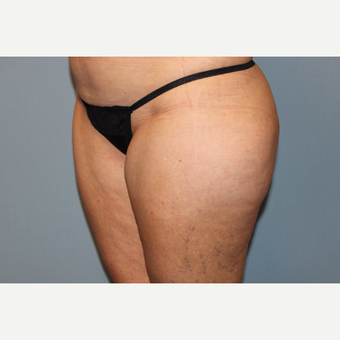 45-54 year old woman treated with Liposuction before 3588284