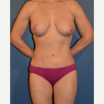 35 year old woman treated with Breast Fat Transfer after 3408247