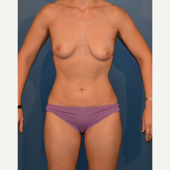 35 year old woman treated with Breast Fat Transfer before 3408247