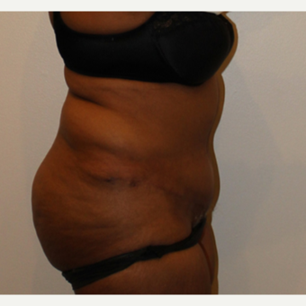55-64 year old woman treated with Tummy Tuck after 3000726