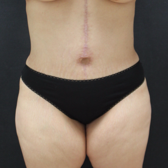 35-44 year old woman treated with Corsetplasty Tummy Tuck after 3747609