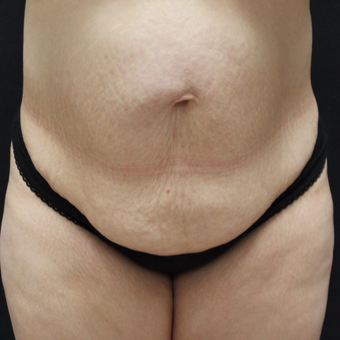 35-44 year old woman treated with Corsetplasty Tummy Tuck before 3747609