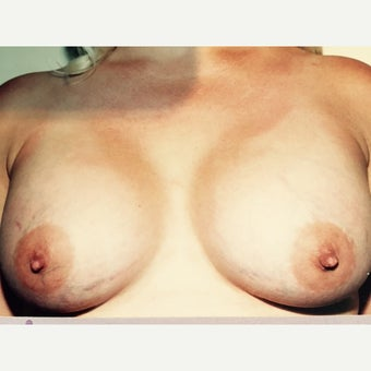 25-34 year old woman treated with Breast Implants after 3093959