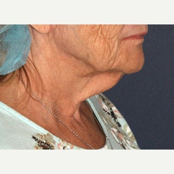 65 year old woman treated with ThermiTight before 1645287