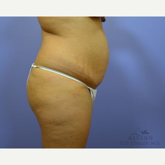 25-34 year old woman treated with Liposuction before 3421508