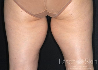 55-64 year old woman treated inner thighs with CoolSculpting before 1719758