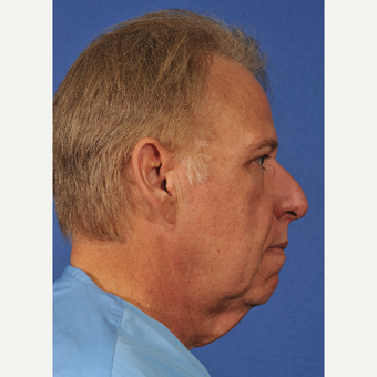 45-54 year old man treated with Facelift before 3236993