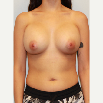 25-34 year old woman treated with Breast Implants after 3027372