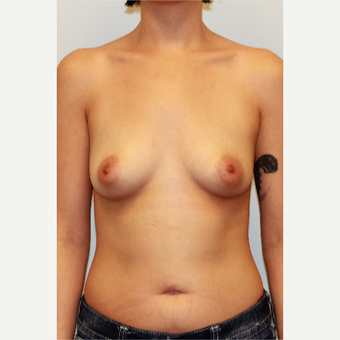 25-34 year old woman treated with Breast Implants before 3027372