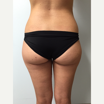 35-44 year old woman treated with Breast Fat Transfer before 3082315