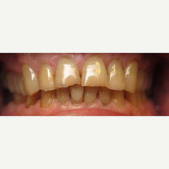 55-64 year old man treated with Porcelain Veneers