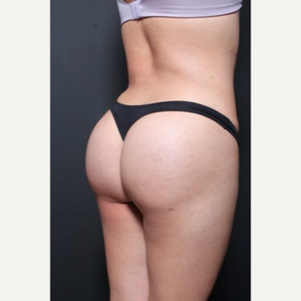 25-34 year old woman treated with Brazilian Butt Lift after 3065681