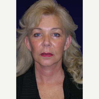 55-64 year old woman treated with Facelift after 3439329