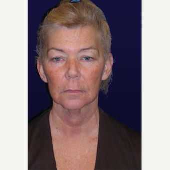 55-64 year old woman treated with Facelift before 3439329