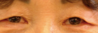 Asian upper eyelid blepharoplasty patient. before 1503120
