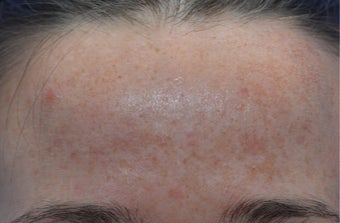 Skin Rejuvenation before 3141040