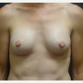 35-44 year old woman treated with Breast Augmentation after 3460298