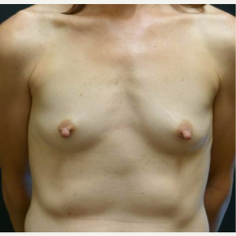 35-44 year old woman treated with Breast Augmentation before 3460298