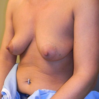 45-54 year old woman treated with Mommy Makeover 1584226