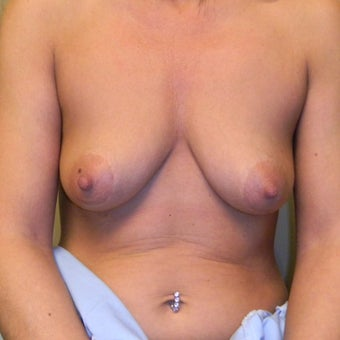 45-54 year old woman treated with Mommy Makeover