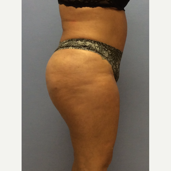 45-54 year old woman treated with Brazilian Butt Lift after 3663758