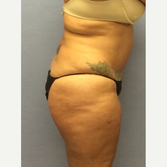 45-54 year old woman treated with Brazilian Butt Lift before 3663758