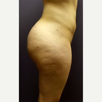 18-24 year old woman treated with Brazilian Butt Lift after 3590251