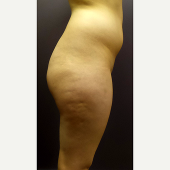 18-24 year old woman treated with Brazilian Butt Lift before 3590251