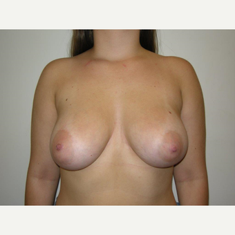 25-34 year old woman treated with Breast Augmentation after 3325062