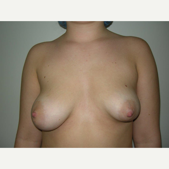 25-34 year old woman treated with Breast Augmentation before 3325062