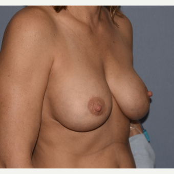 45-54 year old woman treated with Breast Implant Replacements before 3852519
