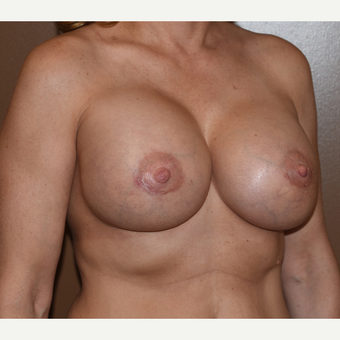 45-54 year old woman treated with Breast Implant Replacements after 3852519