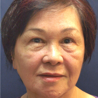 45-54 year old woman treated with Fraxel Laser after 3201914