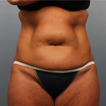 45-54 year old woman treated with CoolSculpting before 3507391