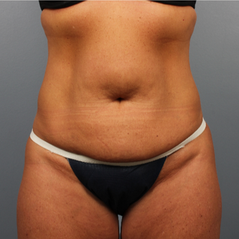 45-54 year old woman treated with CoolSculpting after 3507391