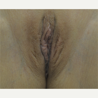35-44 year old woman treated with Labiaplasty after 3419282