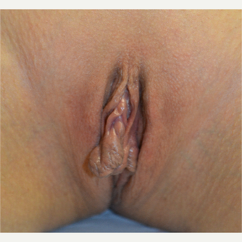 35-44 year old woman treated with Labiaplasty before 3419282