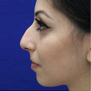 Rhinoplasty before 3202597