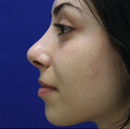 Rhinoplasty after 3202597